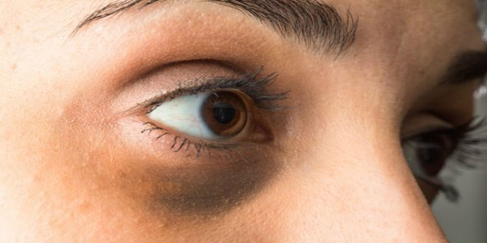 Por qué tiene círculos negros alrededor de los ojos cuando no está cansada  | 800Noticias