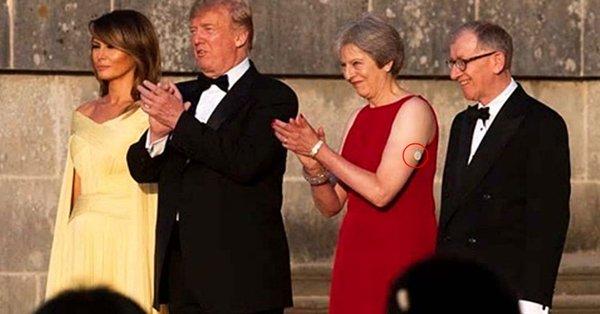 Theresa May tiene un dispositivo blanco en su brazo